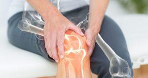 CAN CBD HELP NATURALLY MANAGE ARTHRITIS?