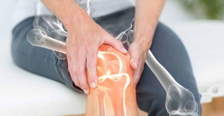 CAN CBD HELP NATURALLY MANAGE ARTHRITIS?